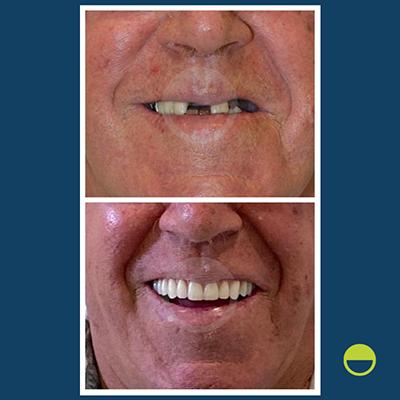 implantes dentários - caso 1