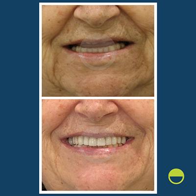 implantes dentários - caso 3