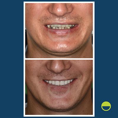 implantes dentários - caso 4